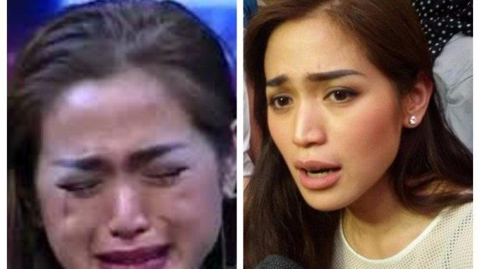 Terlihat Mengerikan, Wajah Jessica Iskandar Rusak Parah Ada Bercak Merah, Terpaksa Berhenti Bekerja