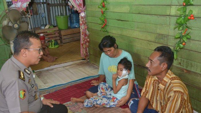 Kondisi Cahaya Ilahi Bocah Penderita Tumor Ganas Usai Operasi Dikunjungi Kepala RS Bhayangkara Jambi