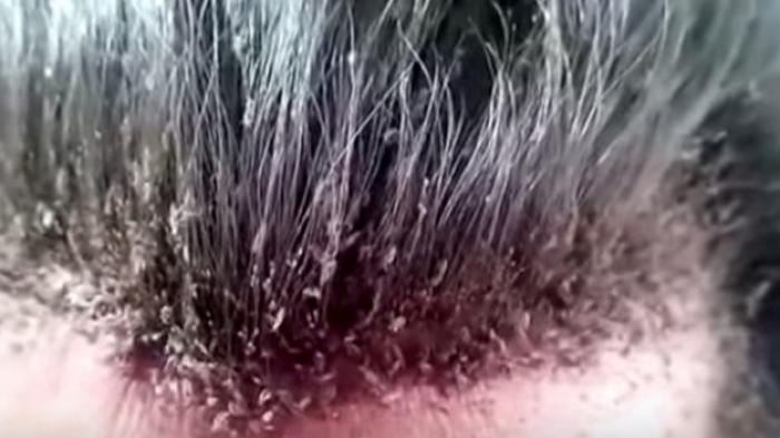 Cara Menghilangkan Kutu Rambut pada Anak-anak - Minyak Adas, Minyak Zaitun, Minyak Kelapa