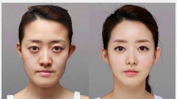 Ada Bahaya dari Iklan Kecantikan di China, Pemerintah Diminta Tegas