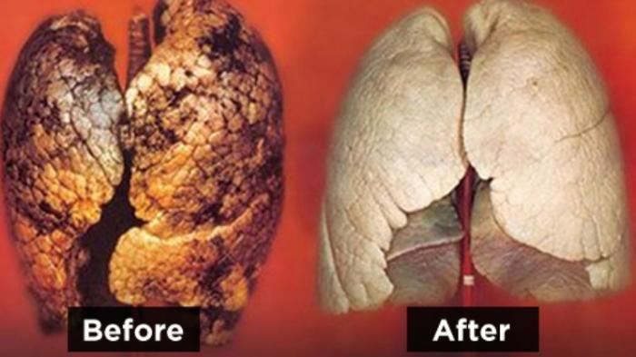 Cara Mudah Membersihkan Paru-Paru Karena Racun Rokok, Diantaranya dengan Batuk