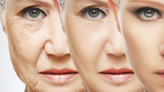 Kurang Tidur Dapat Sebabkan Penuaan Dini, Ketahui Kebiasaan Buruk Lainnya
