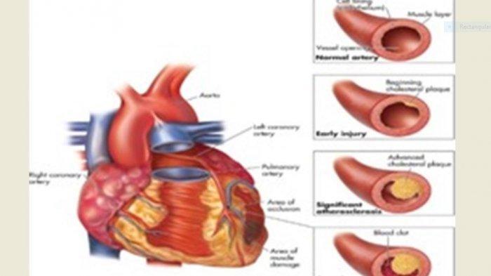 Gangguan Pada Peredaran Darah Manusia yang Sering Terjadi, Hipertensi hingga Jantung Koroner