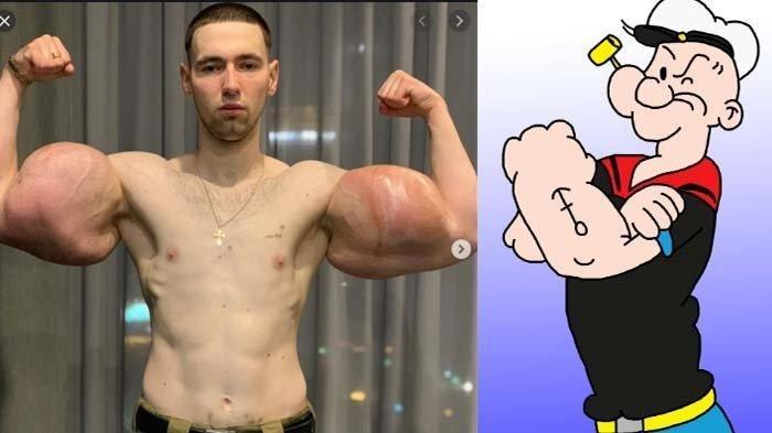 Rela Suntik Otot Palsu Demi Mirip Popeye, Pria Ini Menyesal, Terancam Tewas Jika Operasi Gagal