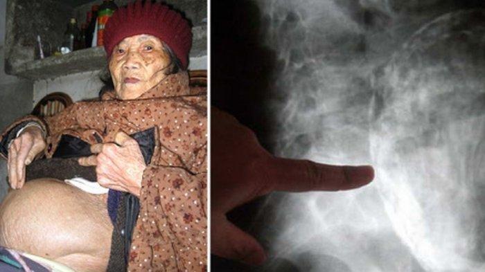 Wanita ini Alami Kehamilan Selama 60 Tahun karena Kondisi Abnormal, Sampai Bikin Dokter Terkejut