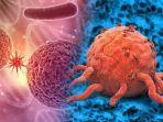 02032020_kanker-dan-tumor.jpg