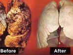 17022018-bersihkan-paru-paru_20180217_112422.jpg