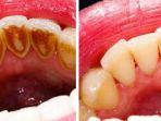 cara-menghilangkan-karang-gigi_20180430_154411.jpg