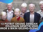 keluarga-albino-di-india-232.jpg