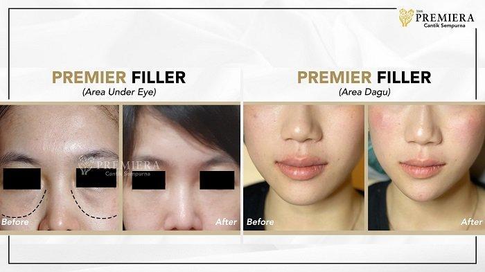 Simak! Apa Bedanya Botox, Filler, Threadlifts dan DNA Healer?