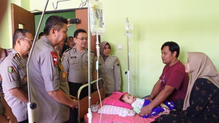 HUT Bhayangkara ke 73, Polda Jateng Operasi Bibir Sumbing 39 Anak