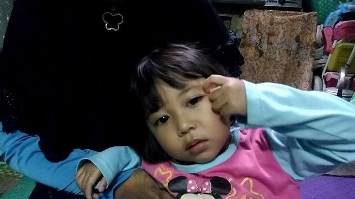 VIRAL! Bocah Berambut Gembel Wonosobo Minta Dicukur Presiden Jokowi, Bikin Orangtuanya Pusing