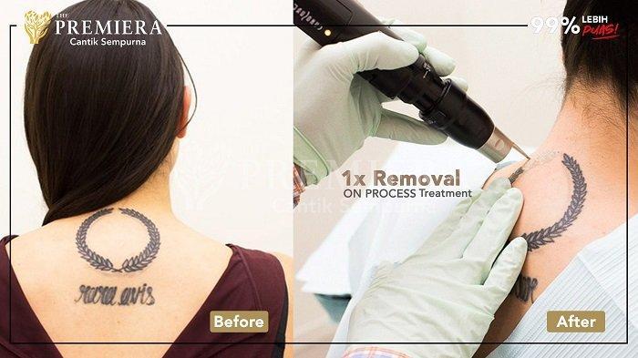 Hapus Tato Permanen yang Disesali dengan Mudah di PREMIERA Skin & BodyCare