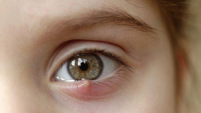 Bukan Karena Sering Ngintip, Ini Penyebab Mata Bintitan, Simak Pula Pencegahan dan Cara Mengatasi