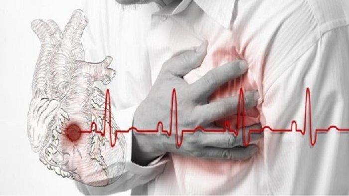 Tidur Mendengkur Rawan Menyebabkan Serangan Jantung, Ini Cara Mengurangi Kebiasaan Mendengkur