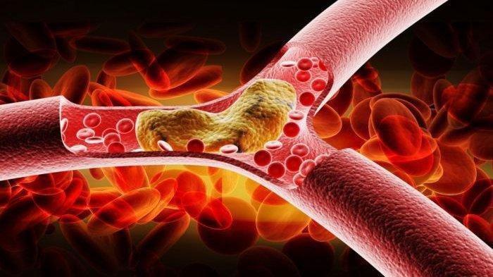 Ilustrasi peredaran darah tersumbat kolesterol