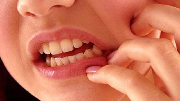 Hukum Cabut Gigi Ketika Puasa Ramadhan, Batalkah?