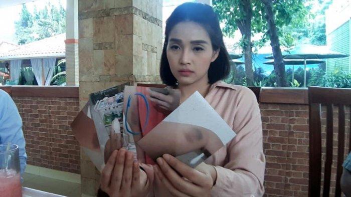 Jessica Wardhana Protes Kakaknya Cuma Dipenjara 3 Bulan: KDRT itu Murah Banget!