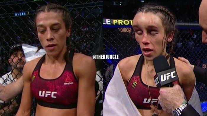 Kena Pukulan Bertubi-tubi, Bagian Kepala Petarung UFC Wanita IniBengkak Tak Berbentuk