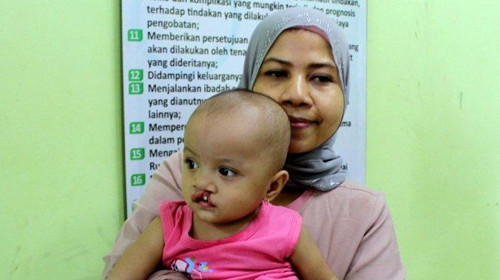 Vera Lega Bayinya Segera Operasi Bibir Sumbing, Wujud Bakti Sosial Polda Jateng