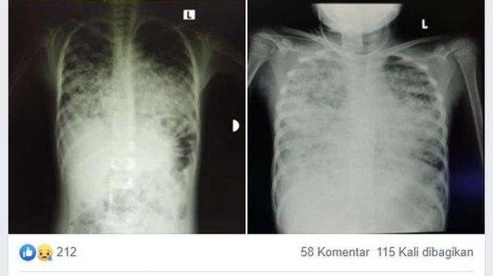 UPDATE Virus Corona ASEAN: Waspada! Indonesia Tertinggi, Kasus Positif Capai 6.575