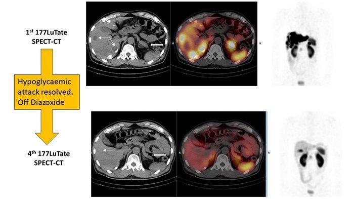 Terapi Radionuklida Bertarget: Rawatan Tumor Neuroendokrin & Kanker Prostat di Sunway Medical Centre