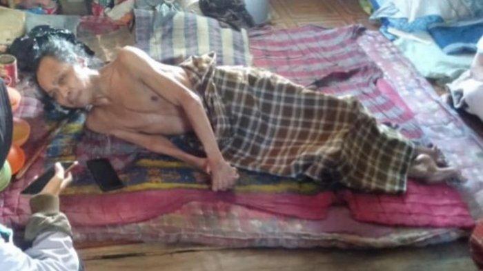 Tubuh Tepu Kaku seperti Kayu, Selama 25 Tahun Hanya Berbaring di Kasur