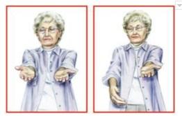 ilustrasi kelemahan lengan