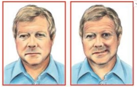 ilustrasi wajah merot