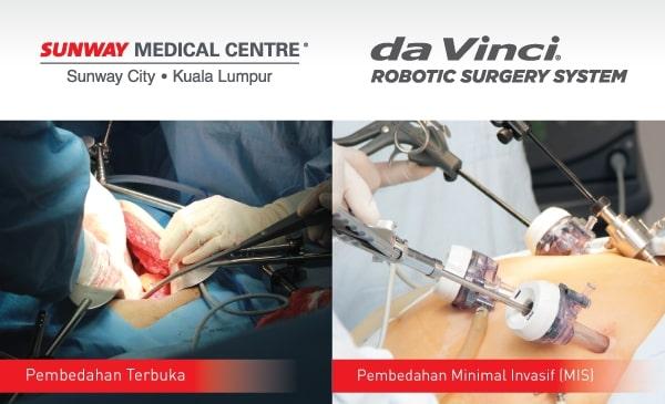 Pembedahan Terbuka Bedah Minimal Invasif (MIS)