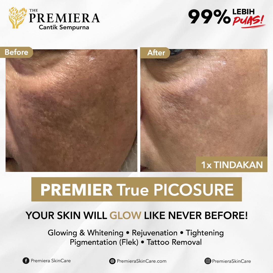 PREMIER True Picosure
