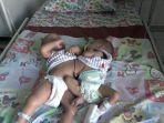 bayi-kembar-siam-solo.jpg