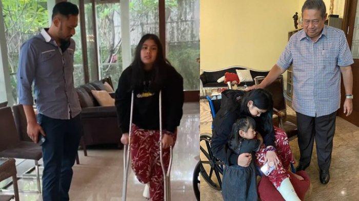 Cucu Pertama SBY, Almira Alami Fraktur di Kaki Kanannya, Putri AHY & Annisa Pohan Itu Pakai Tongkat