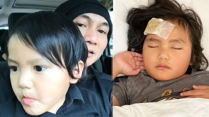 Cerita Anji yang Panik Anaknya Jatuh & Pelipis Robek, Dokter Tolak Dihubungi, Pindahkan ke RS Lain
