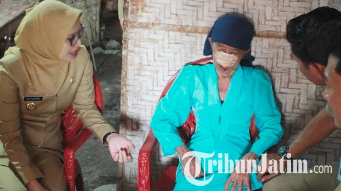 Mbah Sumo Sakit Melanoma, Bupati Probolinggo Tantriana Datangi Rumah dan Membujuknya