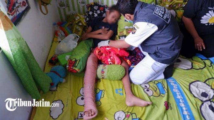 Kisah Bocah SD di Kota Kediri Menderita Kanker Tulang Ganas, Berawal Pincang Dikira Kaki Keseleo