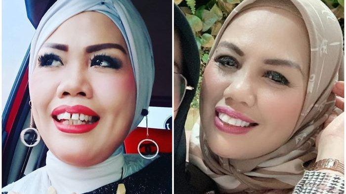 Elly Sugigi Oplas wajah hingga perubahannya bikin heboh media sosial