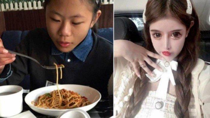 Efek Samping Gadis 100 Kali Oplas, Usia 16 Tahun Habiskan Rp 8,7 M, Kini Wajah Dihujat, Lihat Foto