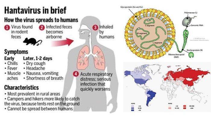 Gejala Orang Terinfeksi Hantavirus dan Ciri-cirinya, Terbagi 2 Jenis, Punya Masa Inkubasi 8 Minggu