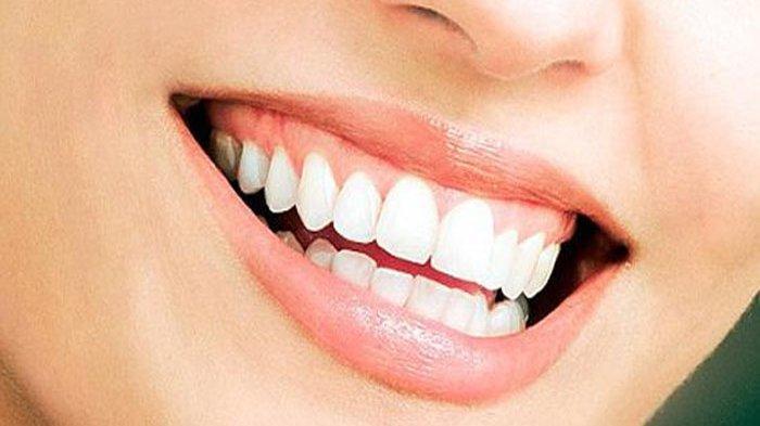 Cara Mudah Memutihkan Gigi dengan Bahan Alami, Simak Juga Beberapa Manfaatnya