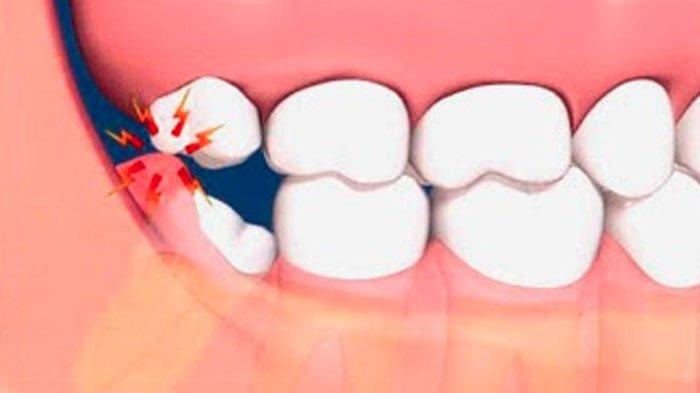 INFO SEHAT TERBARU - Benarkah Gigi Bungsu Tak Miliki Fungsi dan Hanya Timbulkan Masalah?