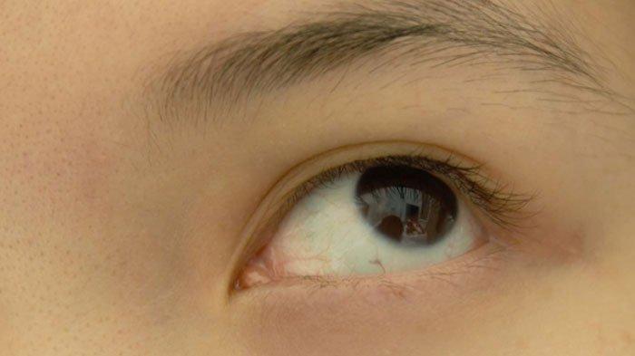 ILUSTRASI - Penyebab mata kiri kedutan.