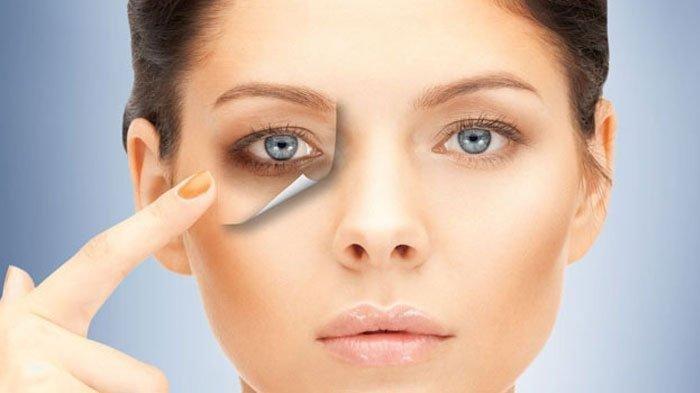 Cara Mengobati Mata Bengkak yang Bisa Ganggu Penampilan, Bisa Pakai 4 Bahan Alami Ini Termasuk Timun