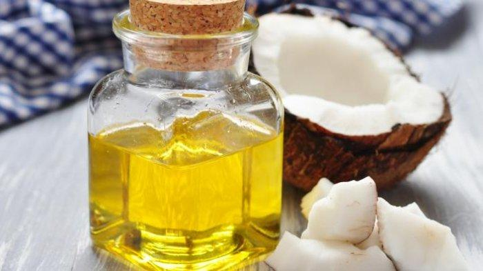 Ilustrasi minyak kelapa.