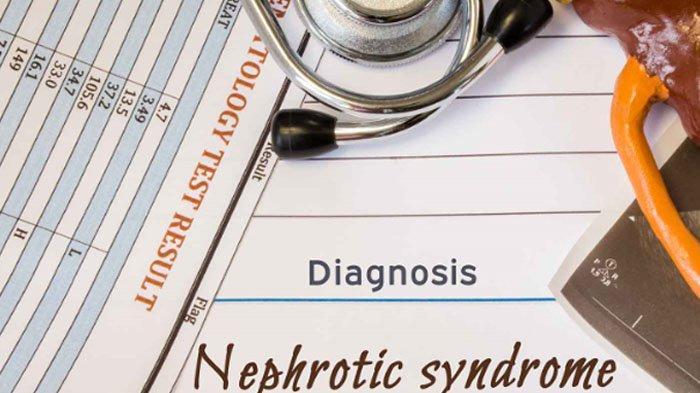 Mengenal Sindrom Nefrotik, dari Gejala, Penyebab hingga Cara Mengobati