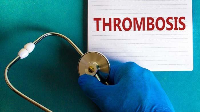 Kadar Trombosit Normal dan Cara Menjaga Kestabilannya, Berikut Deretan Makanan yang Bisa Dikonsumsi
