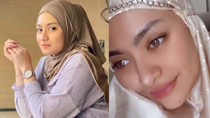 Keanehan Wajah Nathalie Holscher Disorot, Aurel Istri Sule Disebut Beda, Ibu Tiri Rizky-Putri: Happy