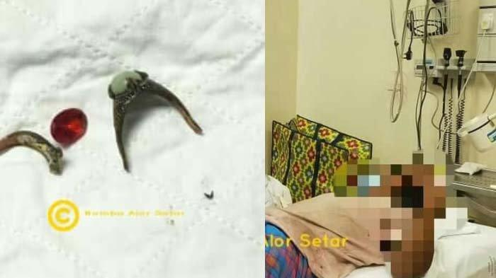 Suami Syok Gagal Lepaskan 2 Benda ini di Alat Vital, 'Nyangkut' Berujung 1 Jam Operasi: Hati-hatilah