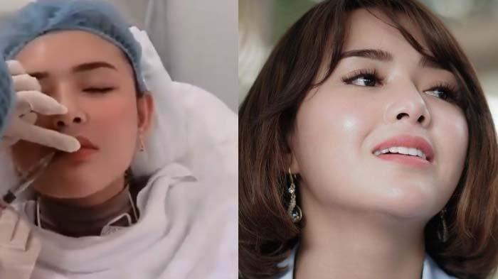 Amanda Manopo Permak Bibir? Bentuk Beda Disorot Habis-habisan, Terekspos Video 'Menyakitkan': Lebam
