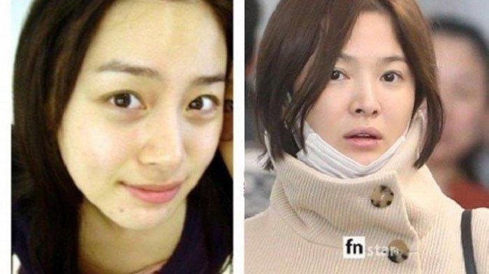 Wajah 8 Artis Korea Tanpa Makeup Tetap Flawless, Beda Muka Asli Jang Na Ra hingga Son Ye Jin